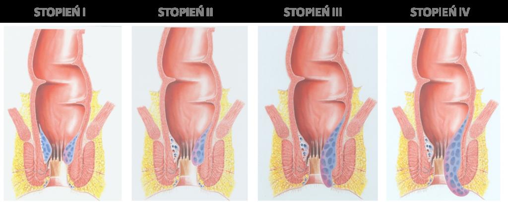 Hemoroidy-żylaki-odbytu-leczenie-konsultacje-chirurg-Skierniewice