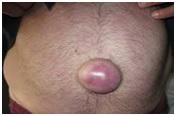przepuklina-leczenie-chirurg-arbormed